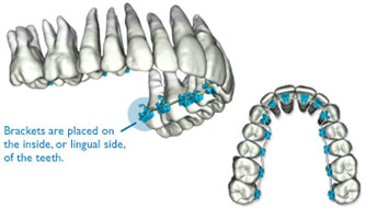 suresmile lingual braces in asheville nc
