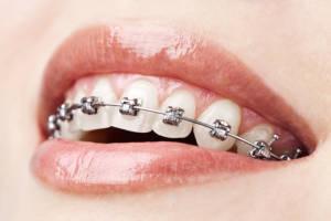 orthodontist asheville nc