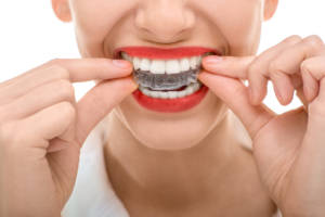 orthodontists asheville nc
