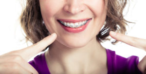 braces in asheville