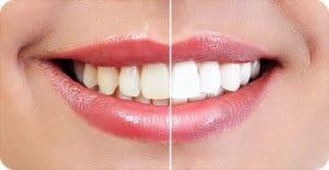 oral surgeon asheville nc
